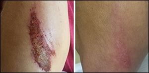 Review - NeoGenesis Recovery for wound care and scarring
