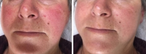rosacea-jw-before-after