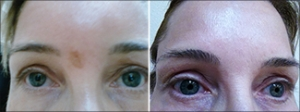 Fraxel Laser scar - before and after photos from NeoGenesis customer