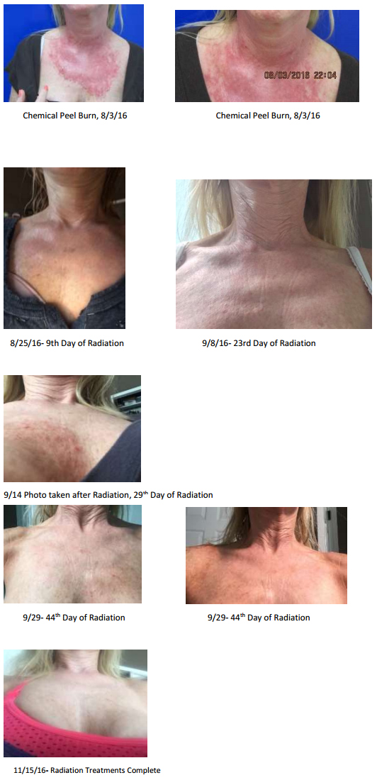 Review Neogenesis Recovery For Chemical Peel And Radiation Dermatitis
