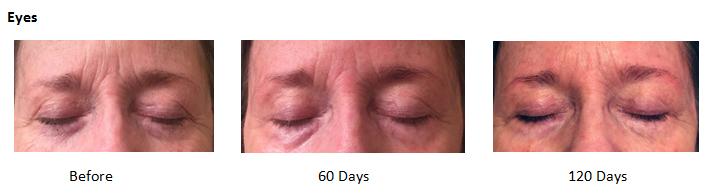 Review - Anti-Aging - NeoGenesis Skin Serum and Intensive Moisturizer