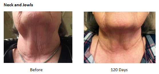 Review - Anti-Aging - Crepey Skin - Neck and Jowl - NeoGenesis Skin Serum and Intensive Moisturizer