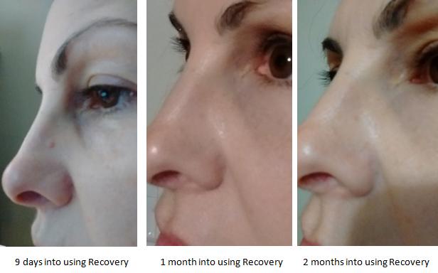 Hyperkeratosis Review - NeoGenesis Recovery