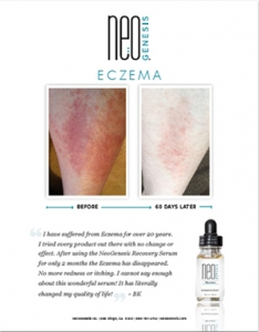 Real Results - NeoGenesis for Eczema