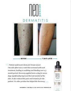 Real Results - NeoGenesis for Dermatitis