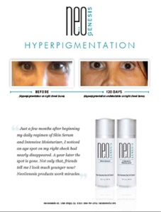 Real Results - Hyperpigmentation