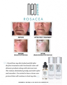 Real Results - NeoGenesis for Rosacea