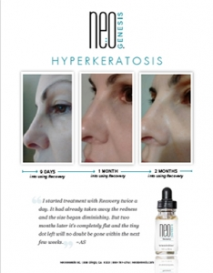 Real Results - NeoGenesis for Hyperkeratosis