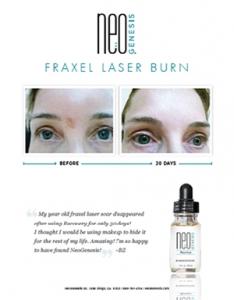 Real Results - NeoGenesis for Fraxel Laser Burns