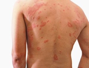 Dermatitis - Our advanced product Recovery, abundant in S²RM® molecules is the best choice for outbreaks of dermatitis.