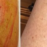 Surgery Scar