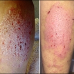 Before and After Pics for MF - Dermatitis - Recovery