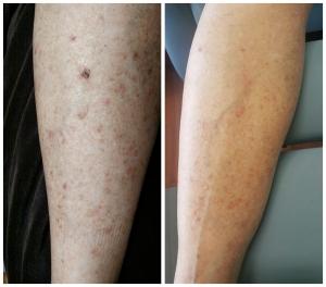 Chemo Rash - Recovery Serum Testimonial